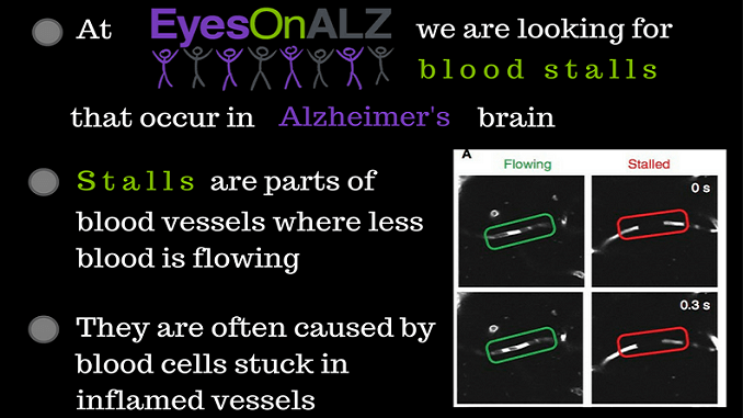 Play Stall Catchers, search the brain for stalled blood vessels